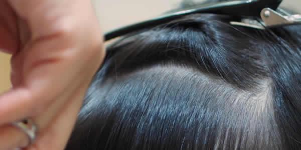 20代女性なのに髪の毛がスカスカ…。スカスカの原因と私の対策法|スカスカだと髪型も決まらない