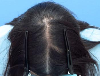 休止期脱毛症の例
